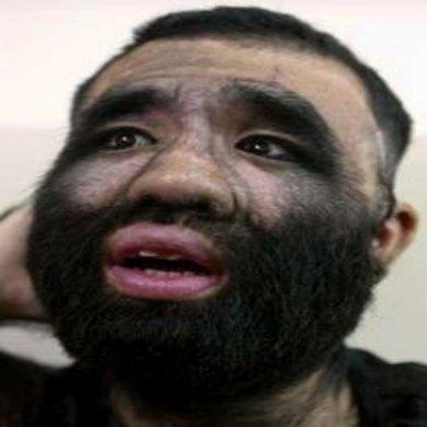 Самый волосатый человек Китая