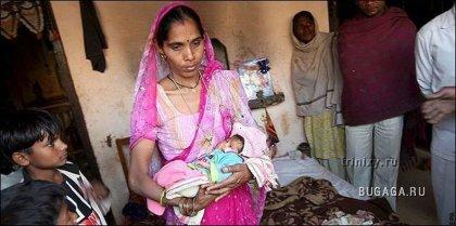 В Индии родилась девочка с двумя лицами