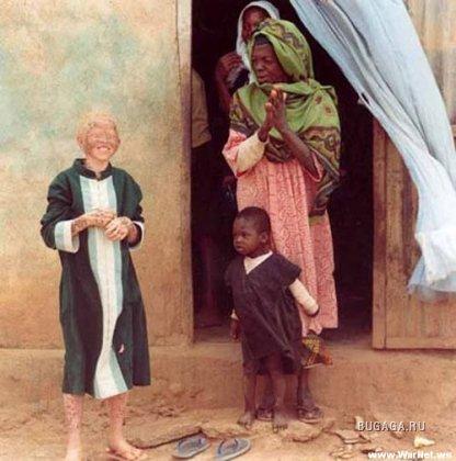 Люди-альбиносы
