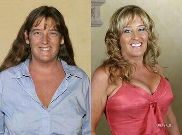 чудеса пластической хирургии фото до и после важное место