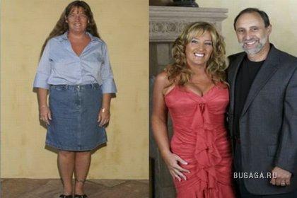 Чудеса пластической хирургии: До и после