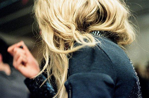 Если вовремя не начать лечение, то возможна потеря всех волос