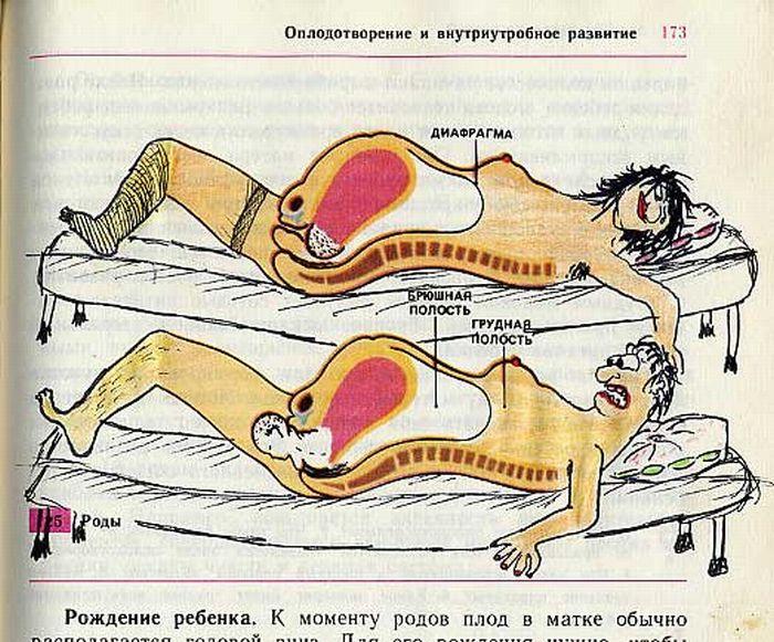 Облысение или лапеция у женщин