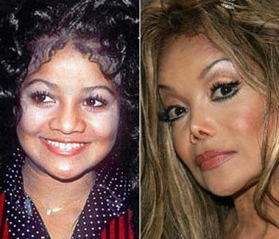 Носы знаменитостей До и После операции