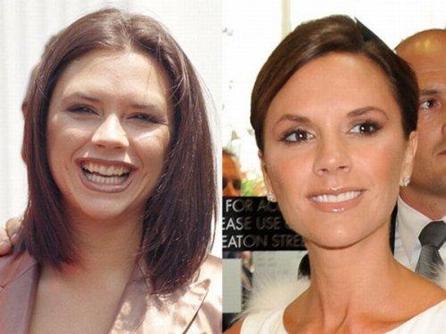 Звезды до и после стоматолога