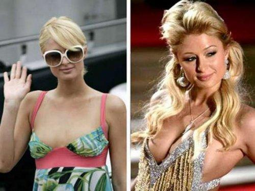 Звезды до и после увеличения груди