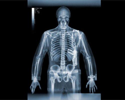 Предметы под рентгеном