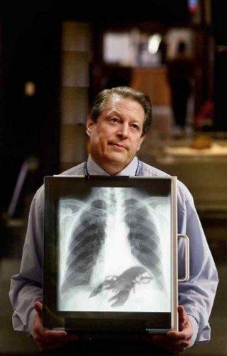 Знаменитости под рентгеном