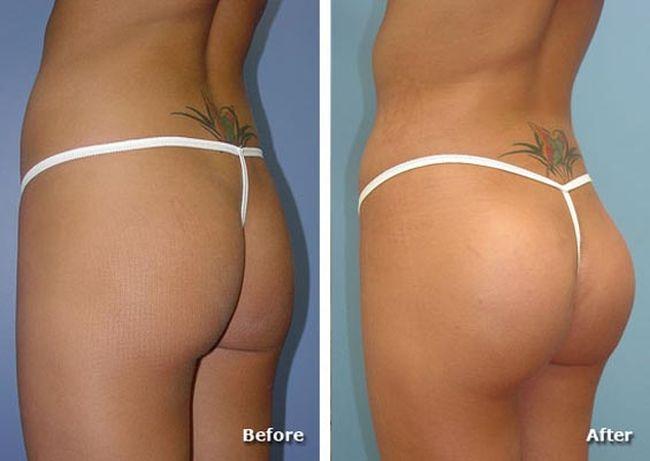 зачем ягодичные импланты фото до и после друзей там