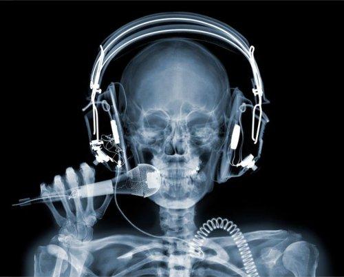 Рентгеновские фото Ника Визи