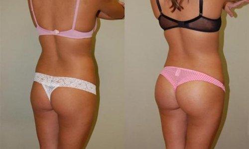 До и после пластических операций