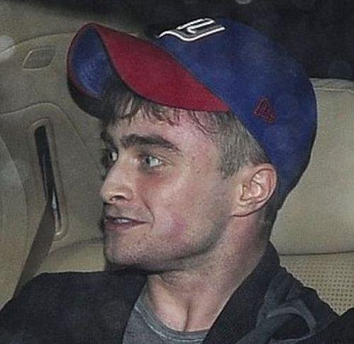 Гарри Поттер уже не тот (5 фото)