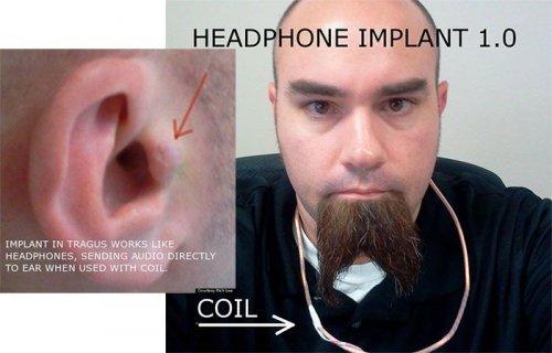 Музыка повсюду: парень вживил наушник себе в ухо