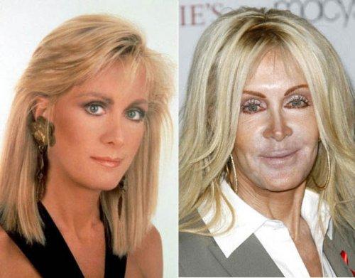 Знаменитости до и после пластики (19 фото)