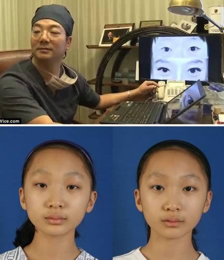 9 Самых странных новых видов косметической хирургии