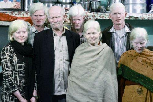 Самая большая семья альбиносов в мире (2 фото + видео)