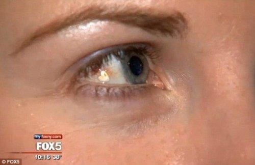 Женщина имплантировала себе в глаз платиновое украшение, чтобы прибавить себе уникальности (2 фото + видео)