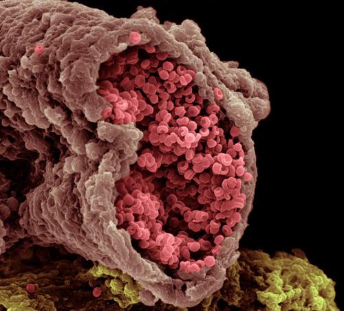 Сперматозоид под электронным микроскопом