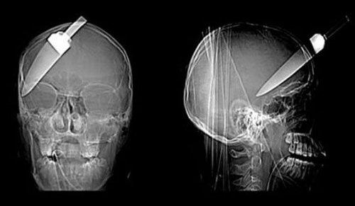 Настоящие рентгеновские снимки, которые шокируют и удивят вас (21 фото)