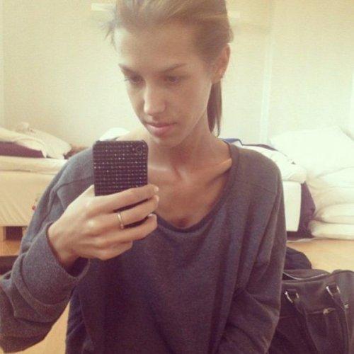 От анорексии до выздоровления вместе с Instagram (13 фото)