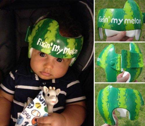 Художница разрисовывает медицинские формирующие шлемы для малышей (26 фото)