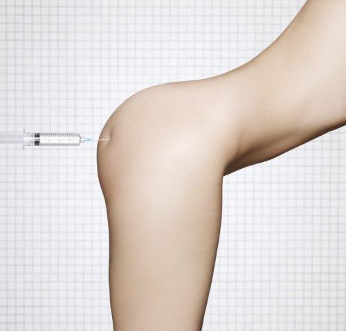 Топ-5 шокирующих операций по модификации тела