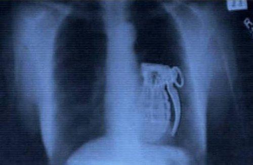 Топ-25 невероятных и странных предметов, найденных в человеческом кишечнике