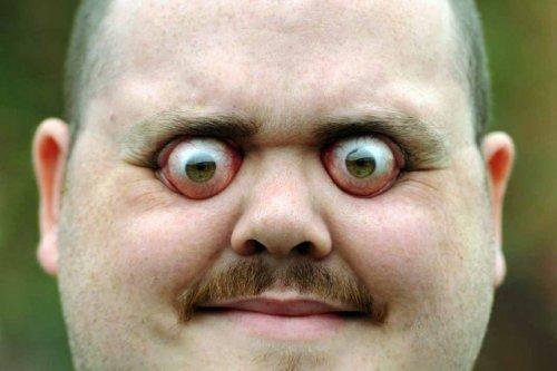 Книга мировых рекордов Гиннесса: глазные яблоки, вылезающие из черепа (6 фото + видео)