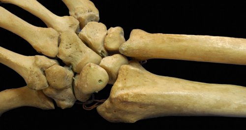 Наша кость – Telegraph