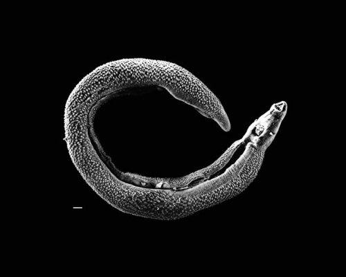 черви в организме человека ввс