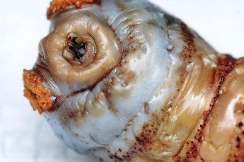 Топ-25: Ужасающие вещи, обнаруженные живыми в человеческом организме