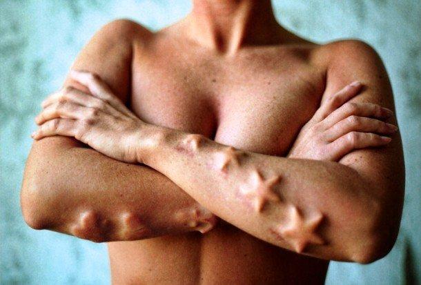 Секс импланты генитальные