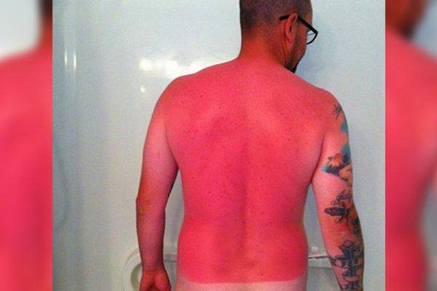 Обгорела спина на солнце зуд что делать
