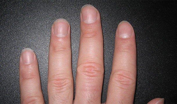 Что означает если нет лунок на ногтях