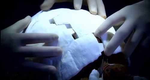 Черепаха Фредди с первым в мире карапаксом, напечатанным на 3D-принтере (6 фото + видео)