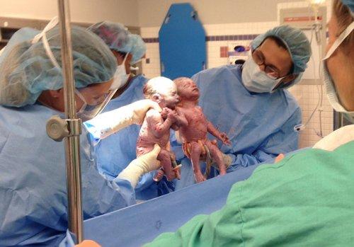 Родившиеся практически за руки близняшки спустя 2 года стали неразлучны (7 фото)