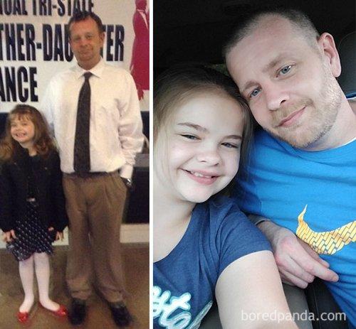 Сравнительные фотографии людей до и после того, как они перестали пить (23 фото)