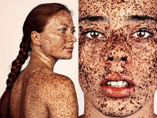 Уникальные люди с необычным цветом кожи (7 фото)