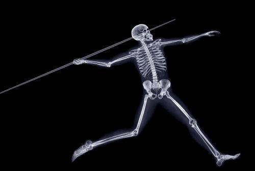 Рентгеновские фотографии Ника Визи (16 шт)
