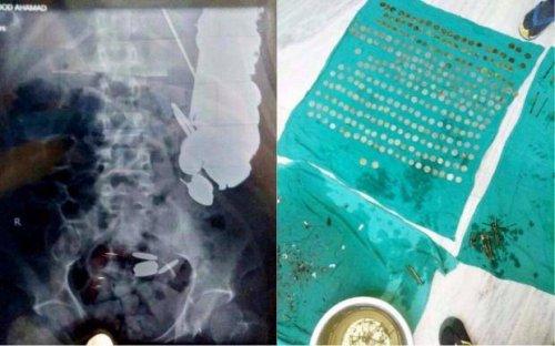 Человек-копилка: врачи извлекли из желудка мужчины 263 монеты и другие металлические предметы (2 фото)