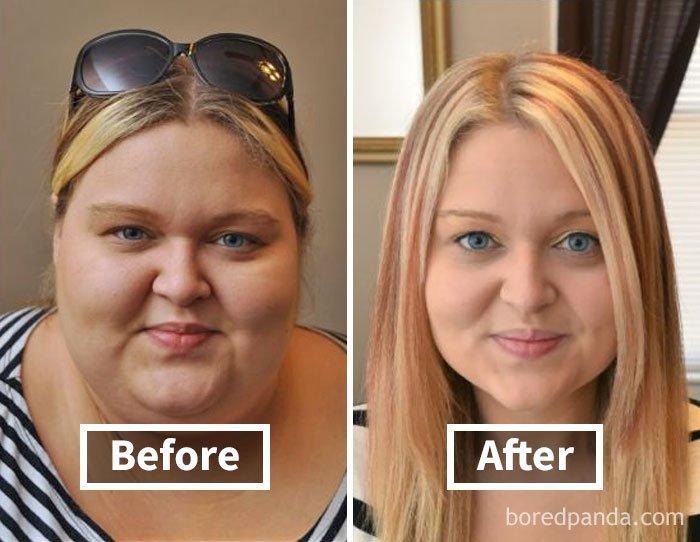 Толстое лицо после похудения
