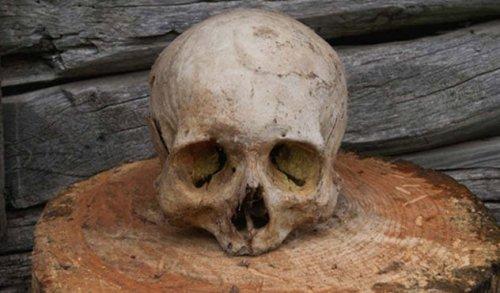 ТОП-10: Странные и удивительные сложности, с которыми сталкивались древние люди