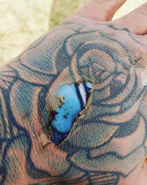 Фото яркой татуировки под кожей в месте ожога вызвали ожесточенные споры в сети (2 фото)