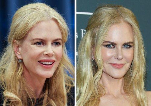 """19 женщин-знаменитостей, которые делали """"пластику"""" и не скрывают этого"""