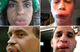 Увеличение губ: быстро и, главное, бесплатно (21 фото)