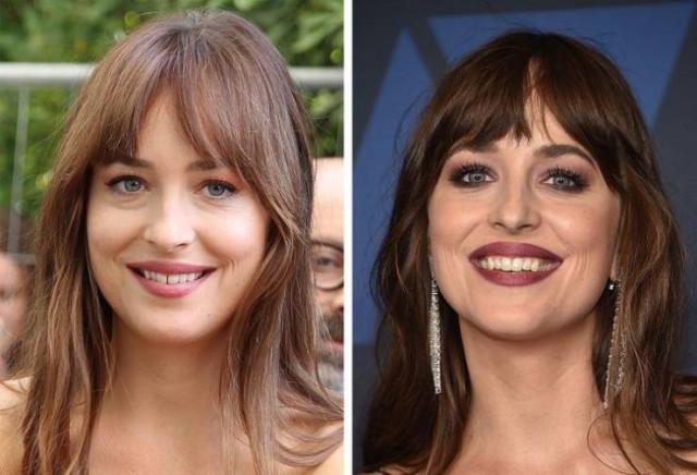 Голливудская улыбка у знаменитостей появилась не сразу