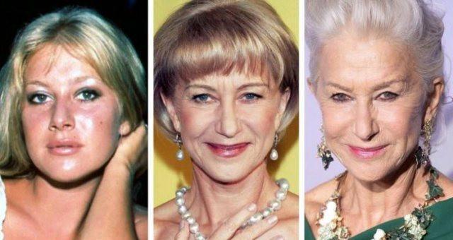 Как с возрастом изменились знаменитости (17 фото)