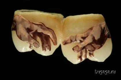 Татуировки на зубах. Кто бы себе такое сделал?