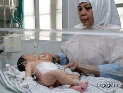 В Индонезии появился на свет двухголовый ребенок