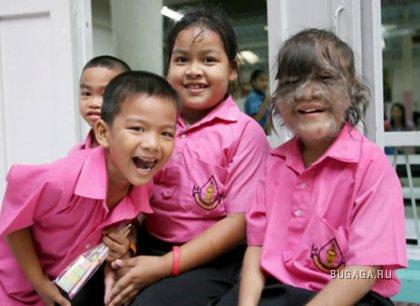 В Бангкоке живет девочка-оборотень (ФОТО)